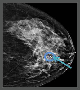 mammography practice tests
